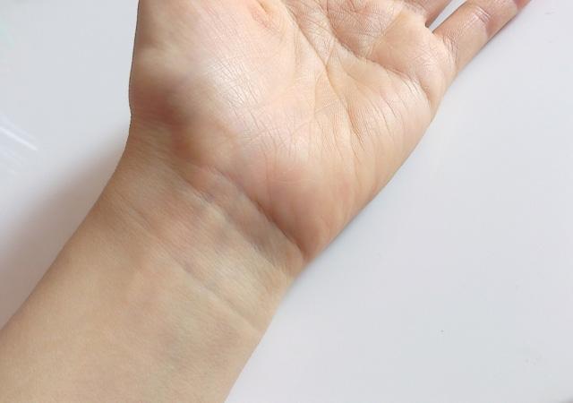 捻挫は肉離れや脱臼と同じ「怪我」の一種です!